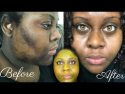 5 DAY TURMERIC FACE MASK CLEARED MY HYPERPIGMENTATION (IM SHOOK) – YouTube