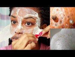 EASY DIY Egg Blackhead Remover Peel Off Mask – YouTube