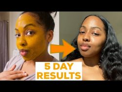 I DID A 5 DAY TURMERIC FACE MASK & This Happened!! || MISS C Beauty – YouTube