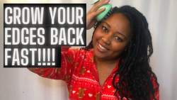 How to REGROW Thinning Edges On Natural Hair | VLOGMAS DAY 24