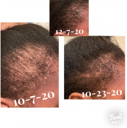 Stimulating Hair Growth Oil for Thinning Edges and Balding Crowns