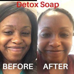 Peppermint Detox Soap