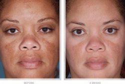 How Arbutin helps clear Hyperpigmentation