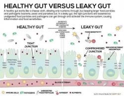 Leaky gut is a real thing