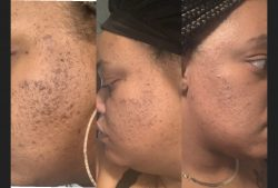 KARE SKINCARE!!! The last skincare product you'll ever need!!