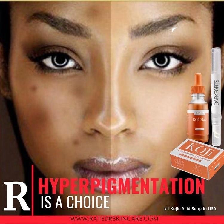 Hyperpigmentation is a Choice