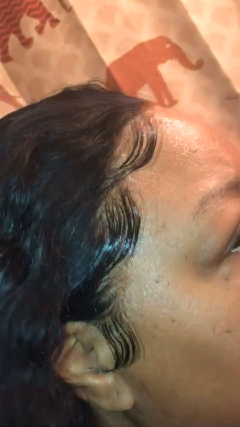 Lace frontal wig