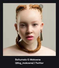 Albinism, just another shade of Black Beauty